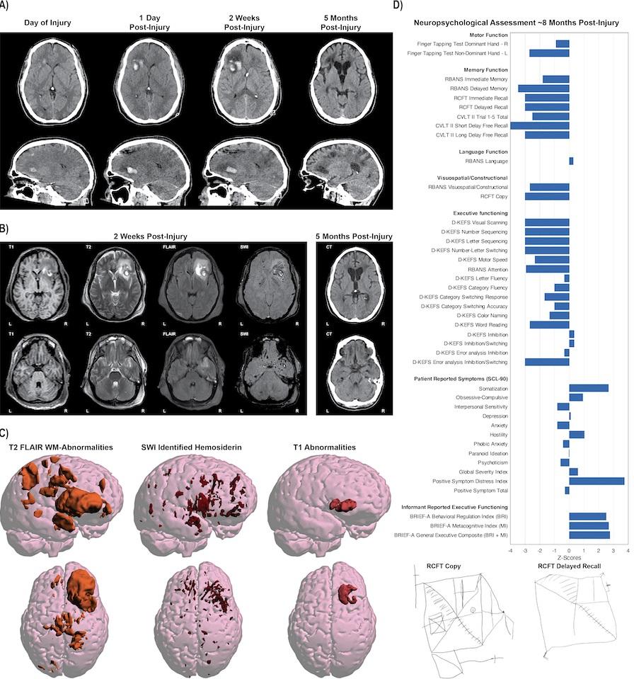 Bildet viser MR av én eneste hjerne.